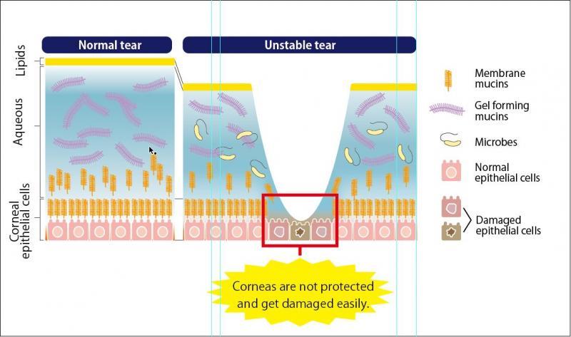 泪液粘蛋白检测试剂盒