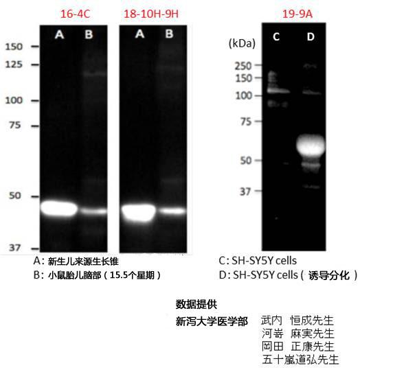 神经生长相关蛋白GAP43单克隆抗体