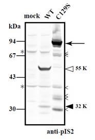 抗P94/钙蛋白酶3多克隆抗体