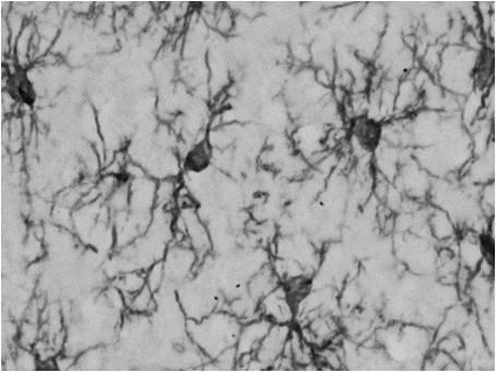 鼠源Iba1抗体,无标签,单克隆抗体(NCNP24)