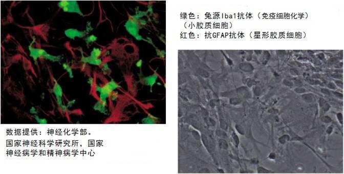 兔源Iba1抗体,无标签